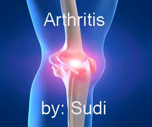 products-arthritis